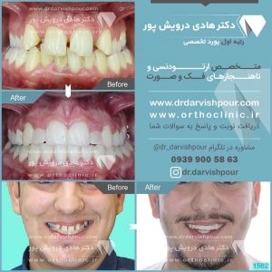 تصویر قبل و بعد از ارتودنسی شماره ۱۵۶۲