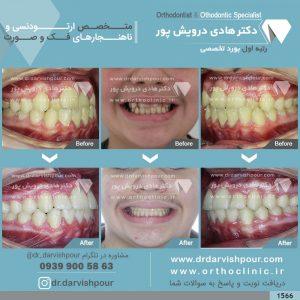 تصویر قبل و بعد از ارتودنسی شماره 1566
