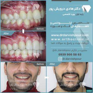 تصویر قبل و بعد از ارتودنسی شماره ۱۵۹۰