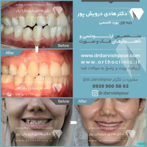 تصویر قبل و بعد از ارتودنسی شماره 1600