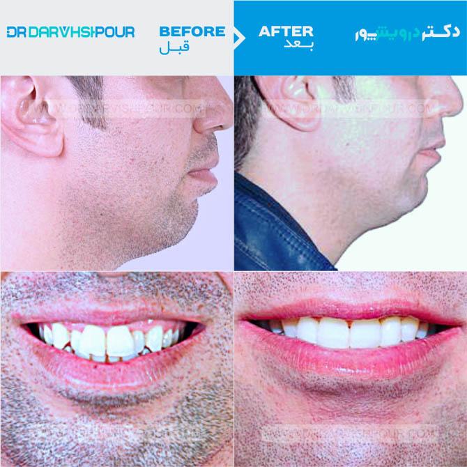 تصویر ارتودنسی ۱ –  ثابت – با کشیدن دندان