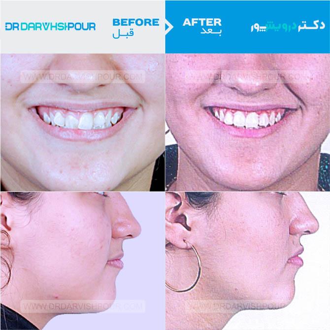 تصویر ارتودنسی ۱۲ –  ثابت و  بدون  کشیدن دندان