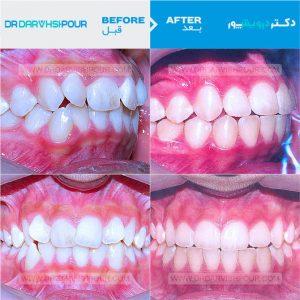 تصویر ارتودنسی ۱۳ –  ثابت و  بدون  کشیدن دندان