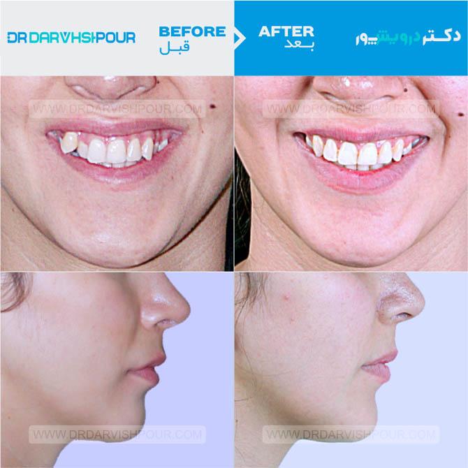 تصویر ارتودنسی ۱۴ –  ثابت – با کشیدن دندان