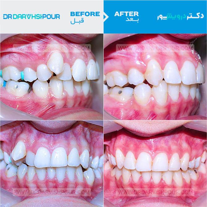 تصویر ارتودنسی ۱۵ –  ثابت – با کشیدن دندان