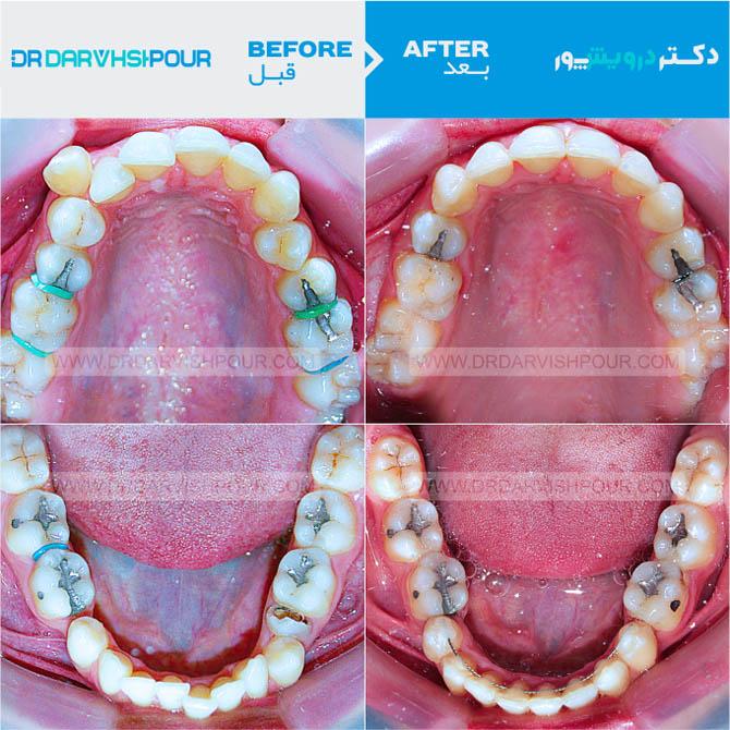 تصویر ارتودنسی ۱۶ –  ثابت – با کشیدن دندان