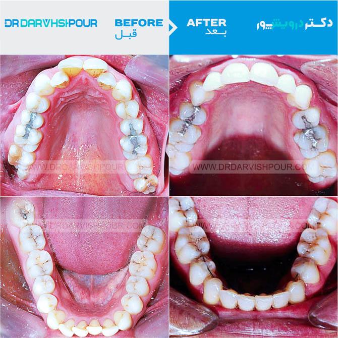 تصویر ارتودنسی ۳ –  ثابت – با کشیدن دندان