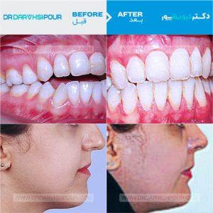 تصویر ارتودنسی 4 –  ثابت با جراحی فک و بدون  کشیدن