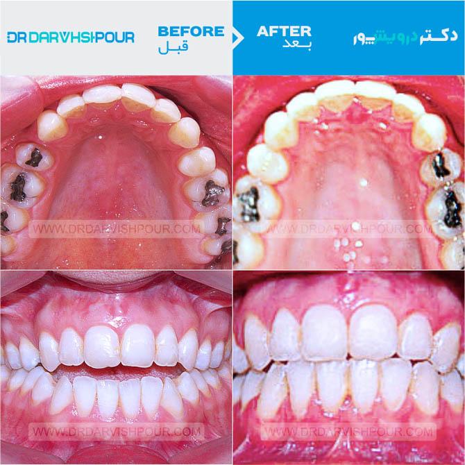 تصویر ارتودنسی ۵ –  ثابت با جراحی فک و بدون  کشیدن
