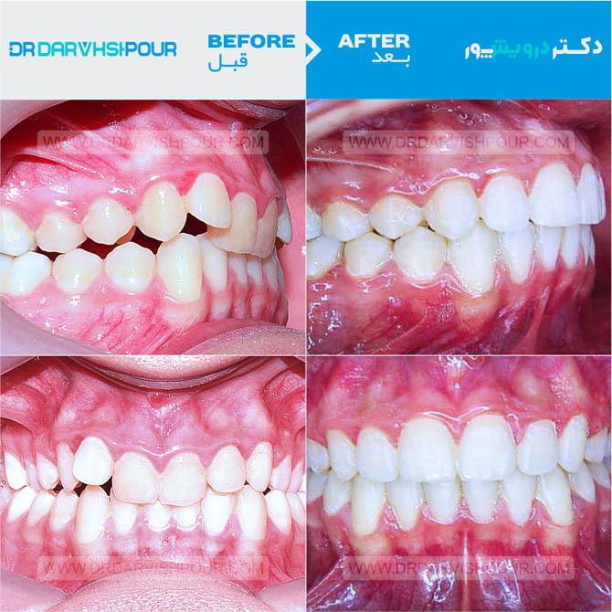 تصویر ارتودنسی ۷ –  ثابت و  بدون  کشیدن دندان