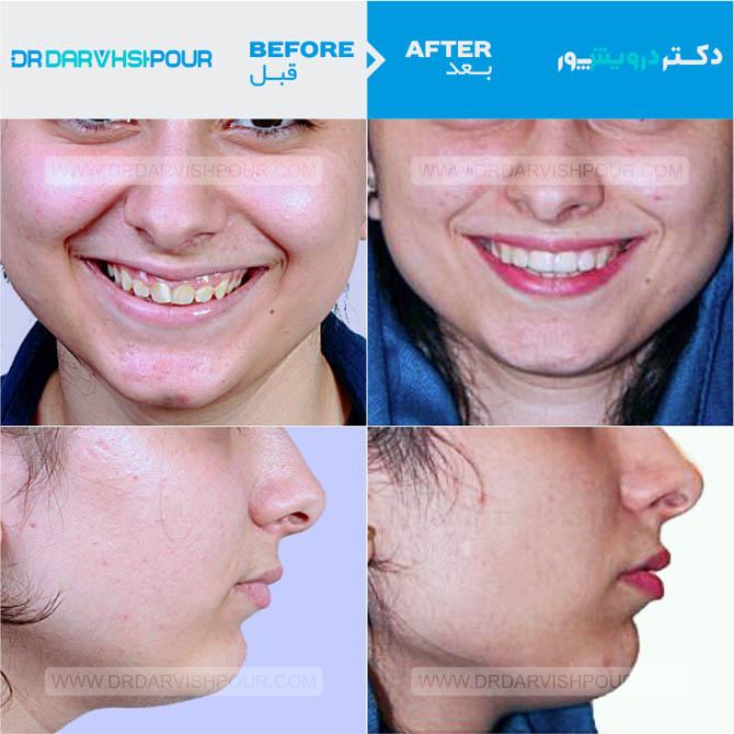 تصویر ارتودنسی ۱۷ –  نامرئی – اینویزیلاین –  بدون  کشیدن دندان