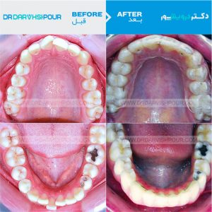تصویر ارتودنسی 19 –  نامرئی – اینویزیلاین –  بدون  کشیدن دندان