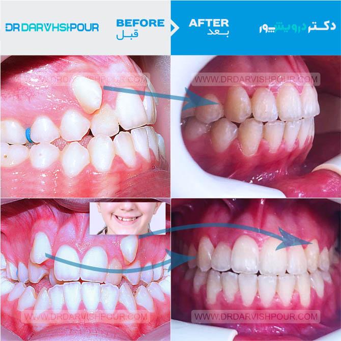 تصویر ارتودنسی ۲۰ –  ارتودنسی دیمون – بدون کشیدن دندان