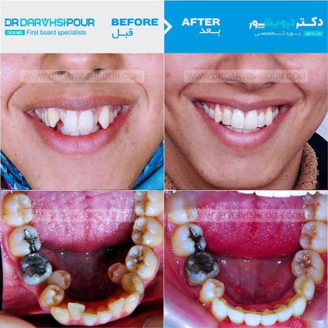 تصویر ارتودنسی ۲۱ –  ثابت – با کشیدن دندان
