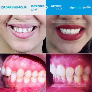 تصویر ارتودنسی ۸ –  ارتودنسی دیمون و بدون  کشیدن دندان