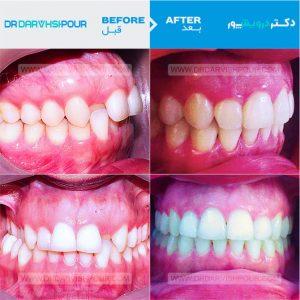 تصویر ارتودنسی ۹ –  ارتودنسی دیمون و بدون  کشیدن دندان