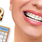 How Much Does Orthodontics Cost?