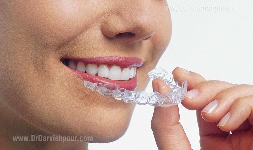 ارتودنسی دندان چیست ؟ هر آنچه باید در مورد ارتودنسی دندان بدانید