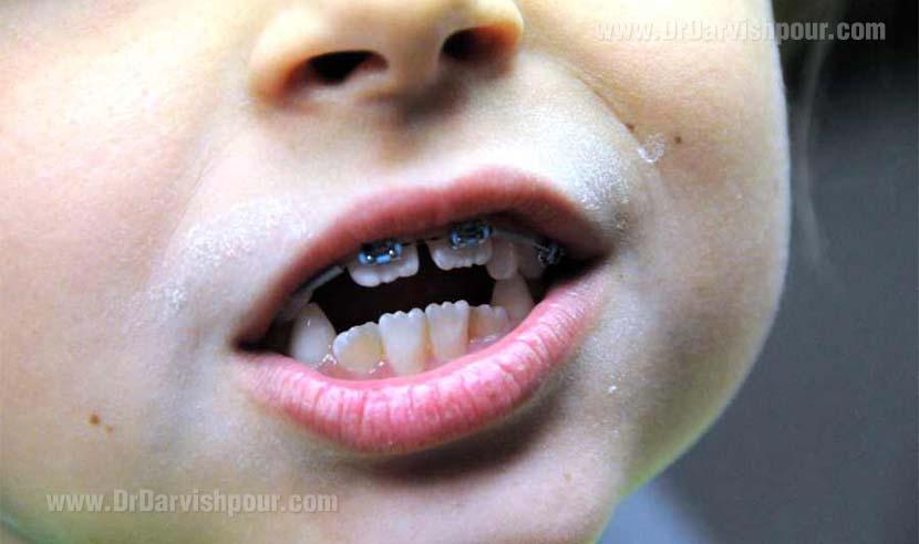 اصلاح اپن بایت دندان های قدامی به وسیله اینتروژن