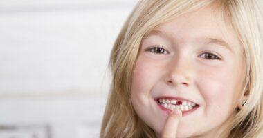 فضا نگهدار ارتودنسی دندان