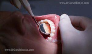 متخصص جراحی لثه و ایمپلنت ( پریودنتیست )