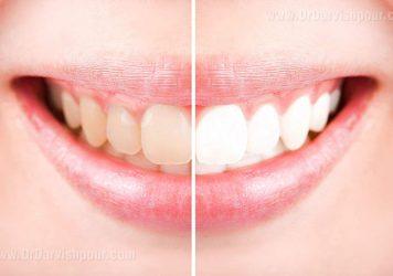 دندان های زرد یا سفید