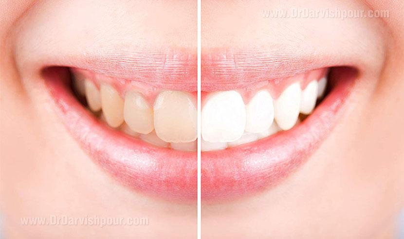 دندان های زرد بهتر است یا سفید؟