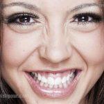 لبخند لثه ای چگونه درمان می شود؟