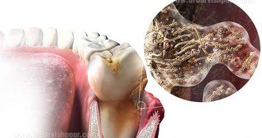 عفونت های شدید دندانی