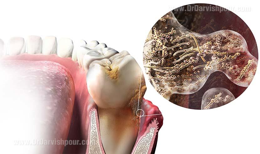 عفونت دندان چیست و چگونه به وجود می آید؟