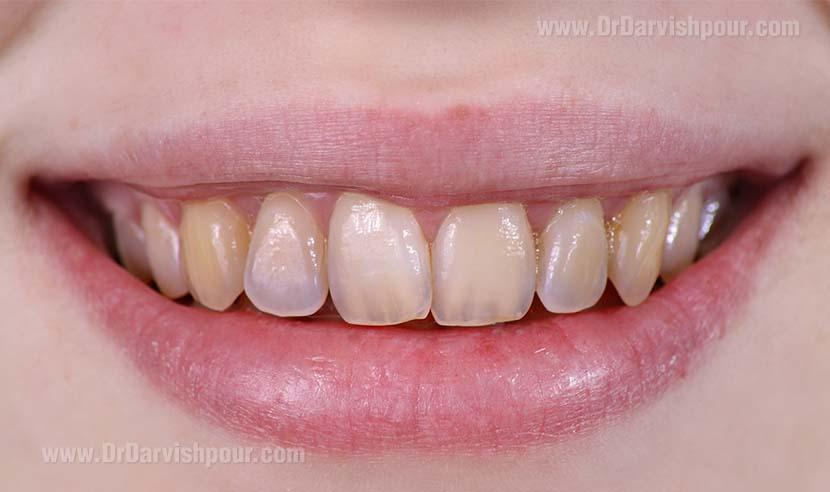 فرسایش و ترمیم مینای دندان