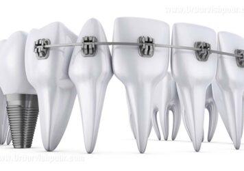 ایمپلنت دندان و ارتودنسی