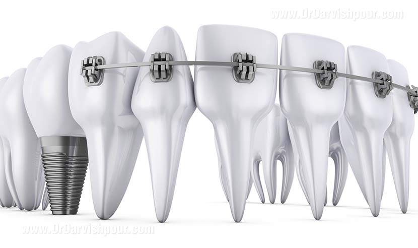 کاشت دندان و ارتودنسی