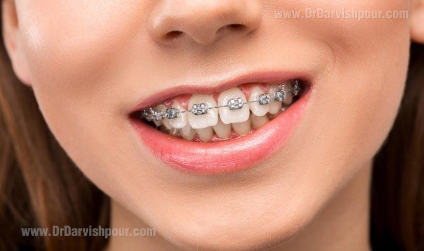 آيا ارتودنسي چند دندان امكان پذير است؟