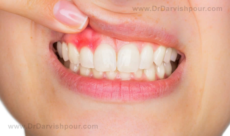 Receding gum: risk factors, prevention, and treatment