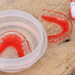 How to clean the removable orthodontic appliance?