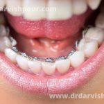 ارتودنسی لینگوال چیست؟ (ارتودنسی پشت دندانی)