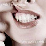 درباره آبسه دندان چه می دانید؟