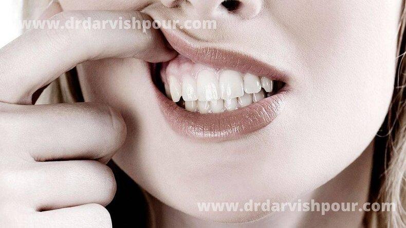 آبسه دندان و ارتودنسی