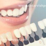 لمینت دندان: بهترین روش برای اصلاح طرح لبخند