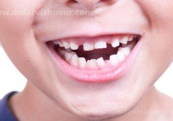 کج شدن دندان کودکان