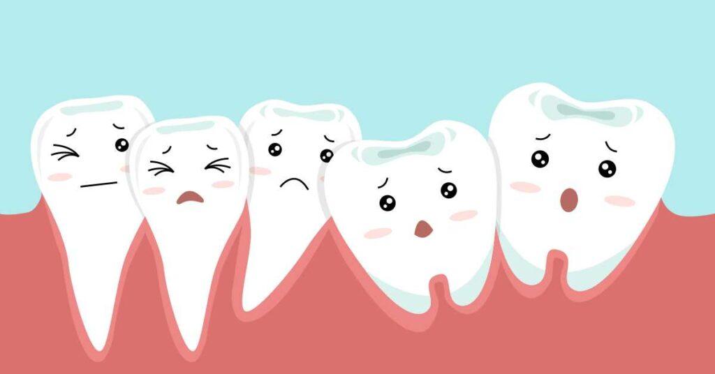 شلوغی دندان ها