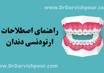اصطلاحات ارتودنسی دندان