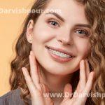 ارتودنسی سرامیکی چیست و به چه کسانی توصیه می شود؟